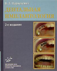 Дентальная имплантология #1