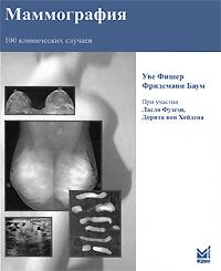 Маммография. 100 клинических случаев | Фишер Уве, Баум Фридеманн  #1