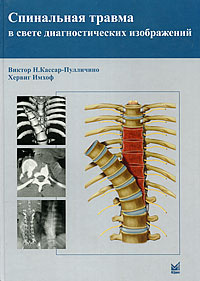 Спинальная травма в свете диагностических изображений  #1