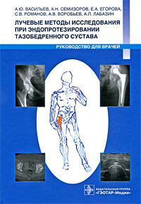 Лучевые методы исследования при эндопротезировании тазобедренного сустава. Руководство для врачей  #1