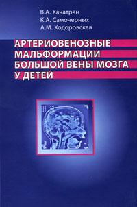 Артериовенозные мальформации большой вены мозга у детей  #1