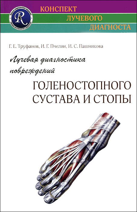 Лучевая диагностика повреждений голеностопного сустава и стопы | Труфанов Геннадий Евгеньевич, Пчелин #1