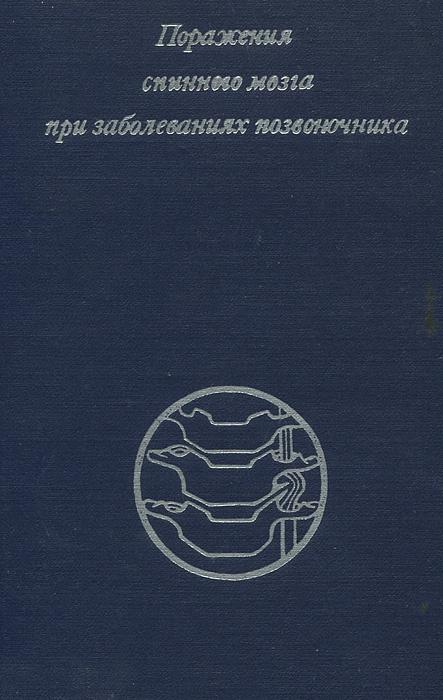 Поражения спинного мозга при заболеваниях позвоночника | Михеев Вадим Владимирович, Иргер Иосиф Маркович #1