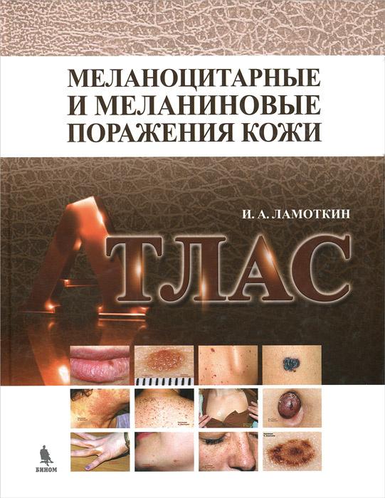 Меланоцитарные и меланиновые поражения кожи. Атлас. Учебное пособие | Ламоткин Игорь Анатольевич  #1