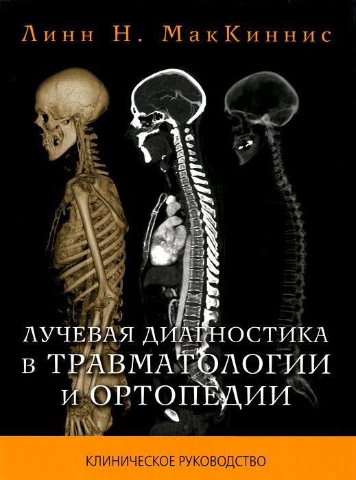 Лучевая  диагностика в травматологии и ортопедии #1