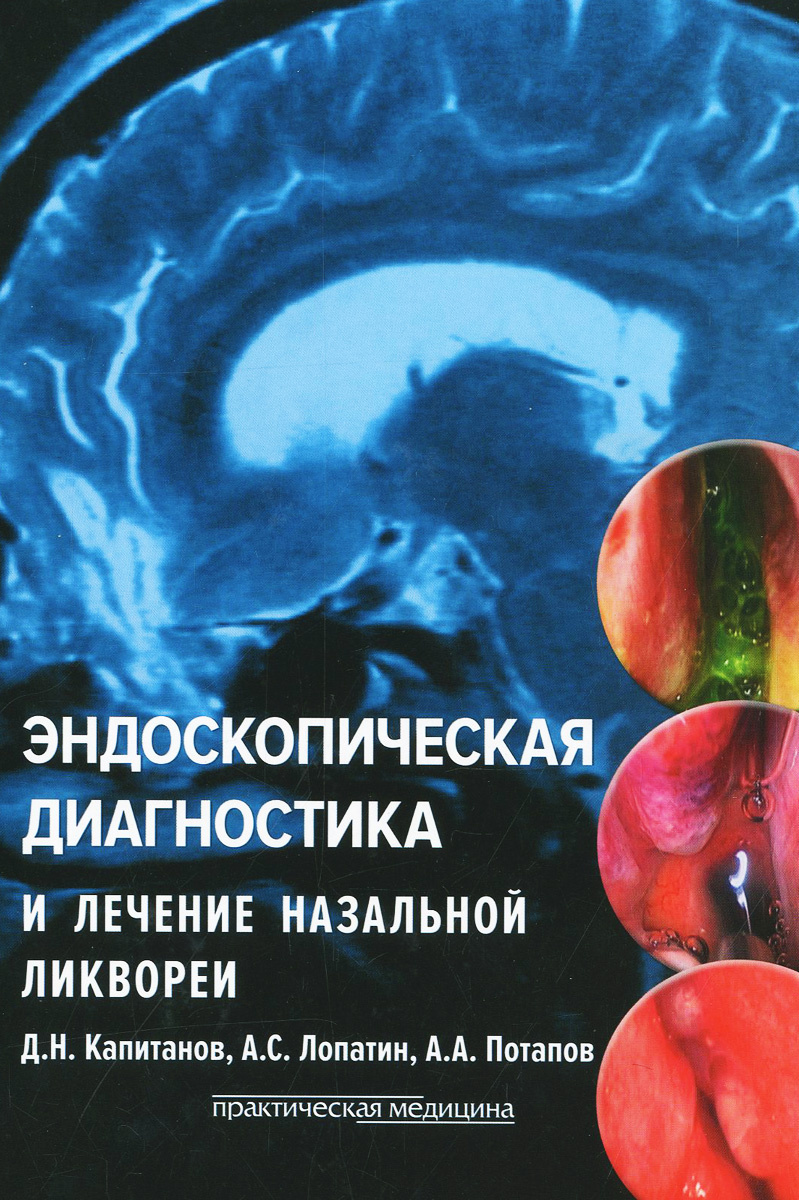 Эндоскопическая диагностика и лечение назальной ликвореи | Капитанов Дмитрий Николаевич, Лопатин Андрей #1