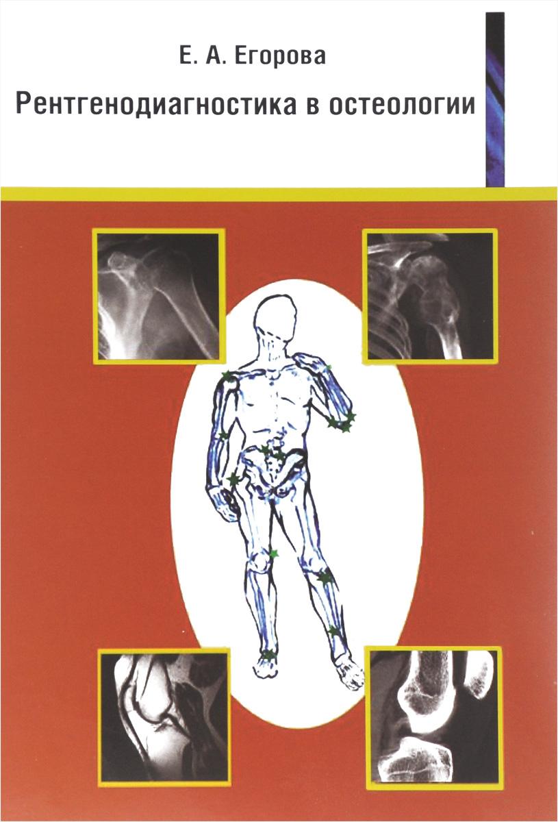 Рентгенодиагностика в остеологии. Учебное пособие #1