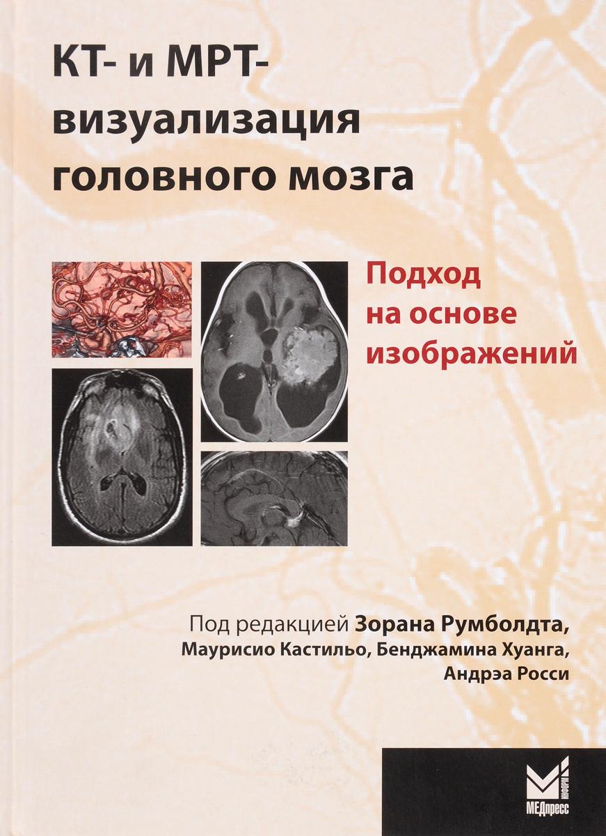 КТ- и МРТ-визуализация головного мозга. Подход на основе изображений  #1