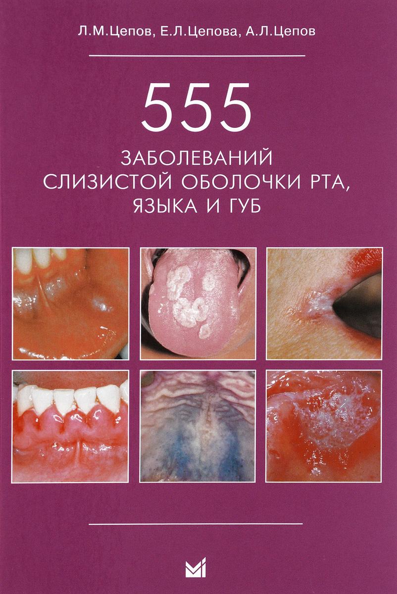 555 заболеваний слизистой оболочки рта, языка и губ | Цепов Леонид Макарович, Цепов Андрей Леонидович #1