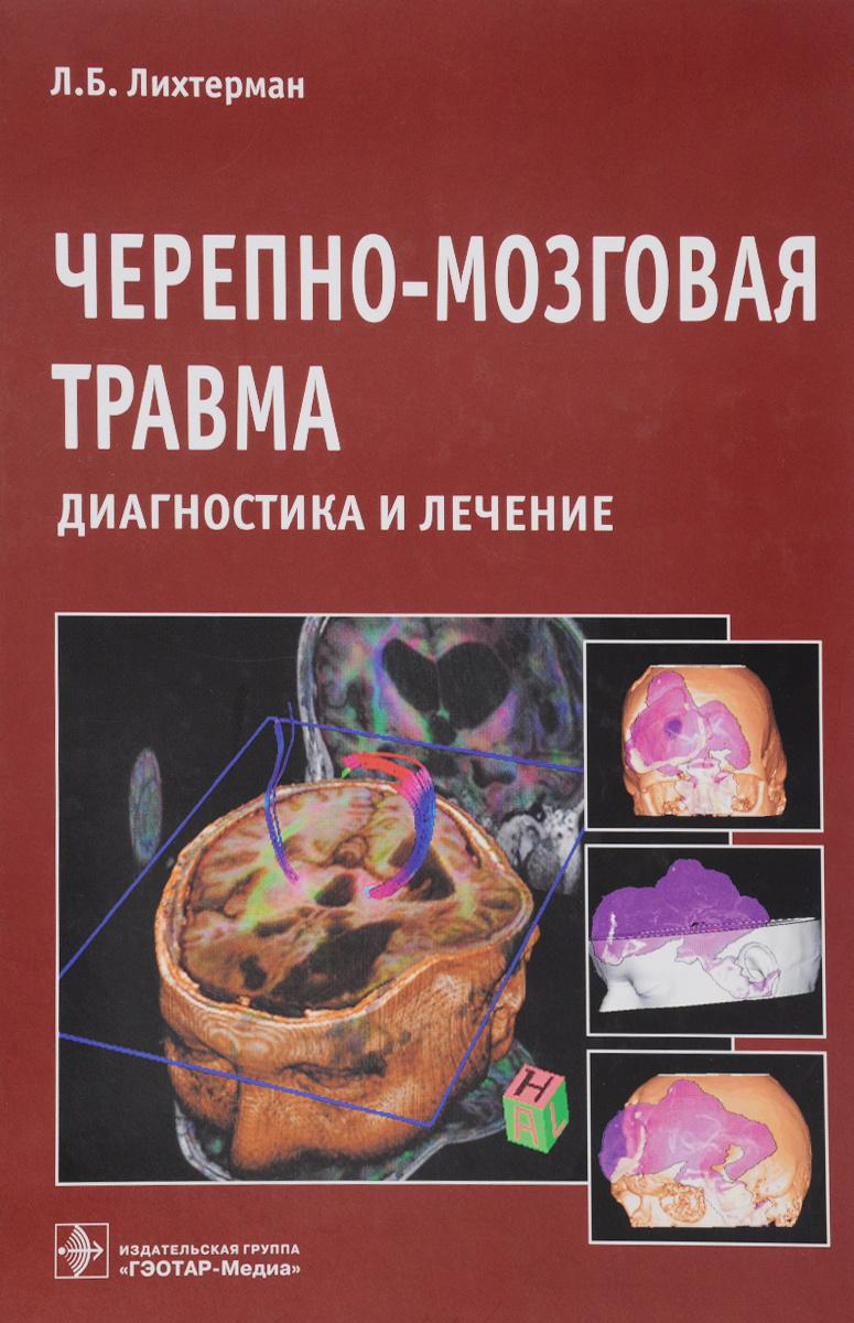 Черепно-мозговая травма. Диагностика и лечение | Лихтерман Леонид Болеславович  #1