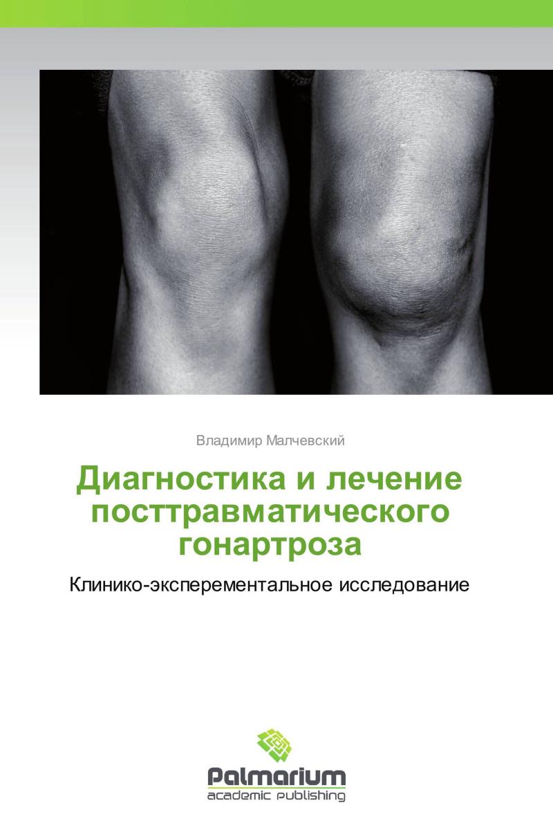 Диагностика и лечение посттравматического гонартроза #1