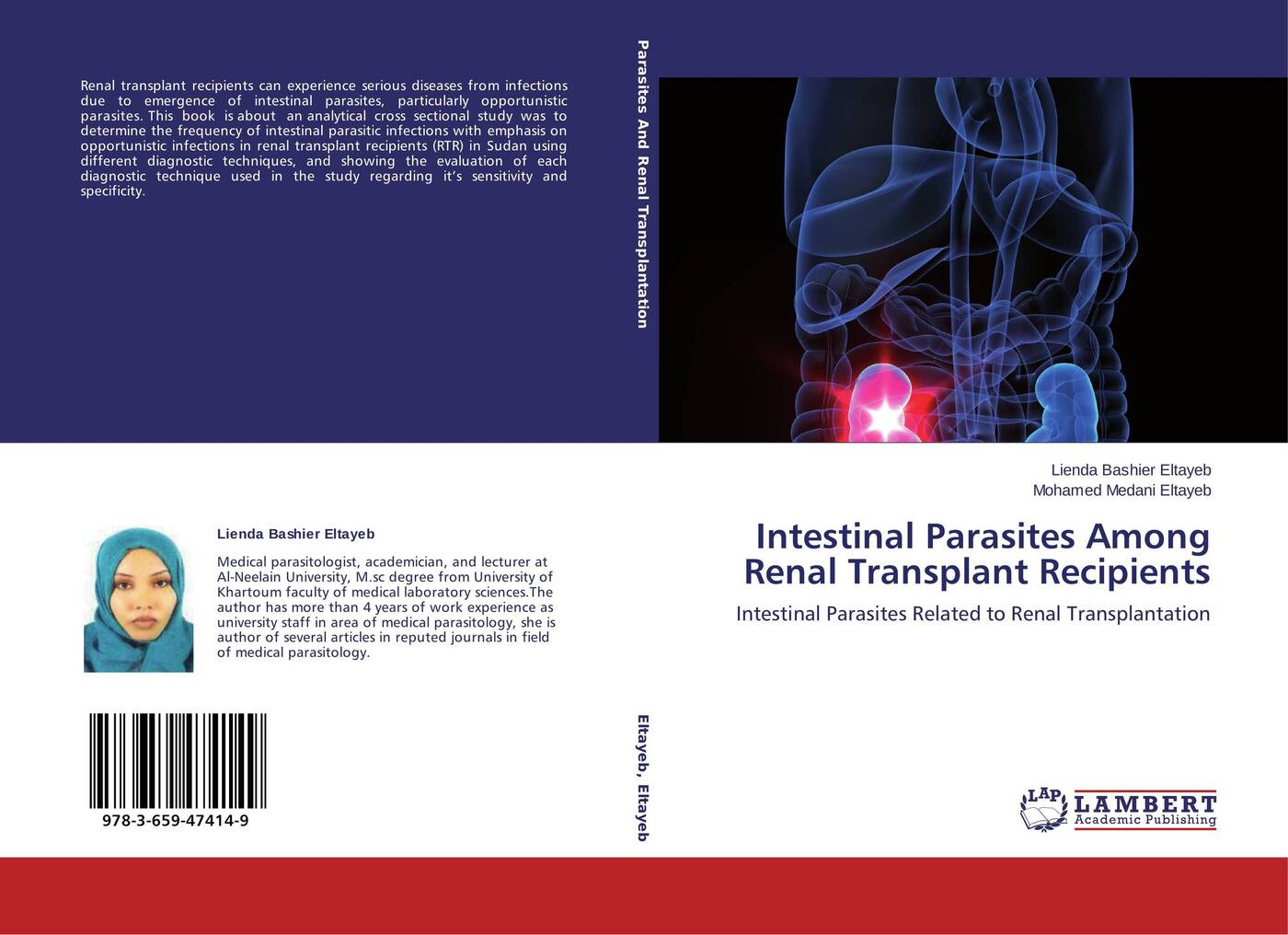 Lienda Bashier Eltayeb and Mohamed Medani Intestinal Parasites Among Renal Transplant Recipients
