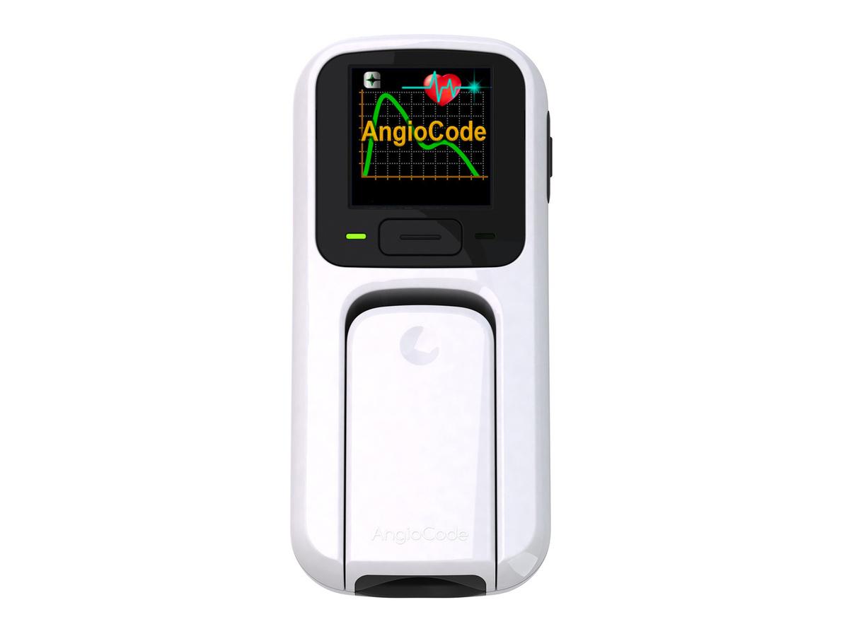 Трекер Здоровья AngioCode-301 #1