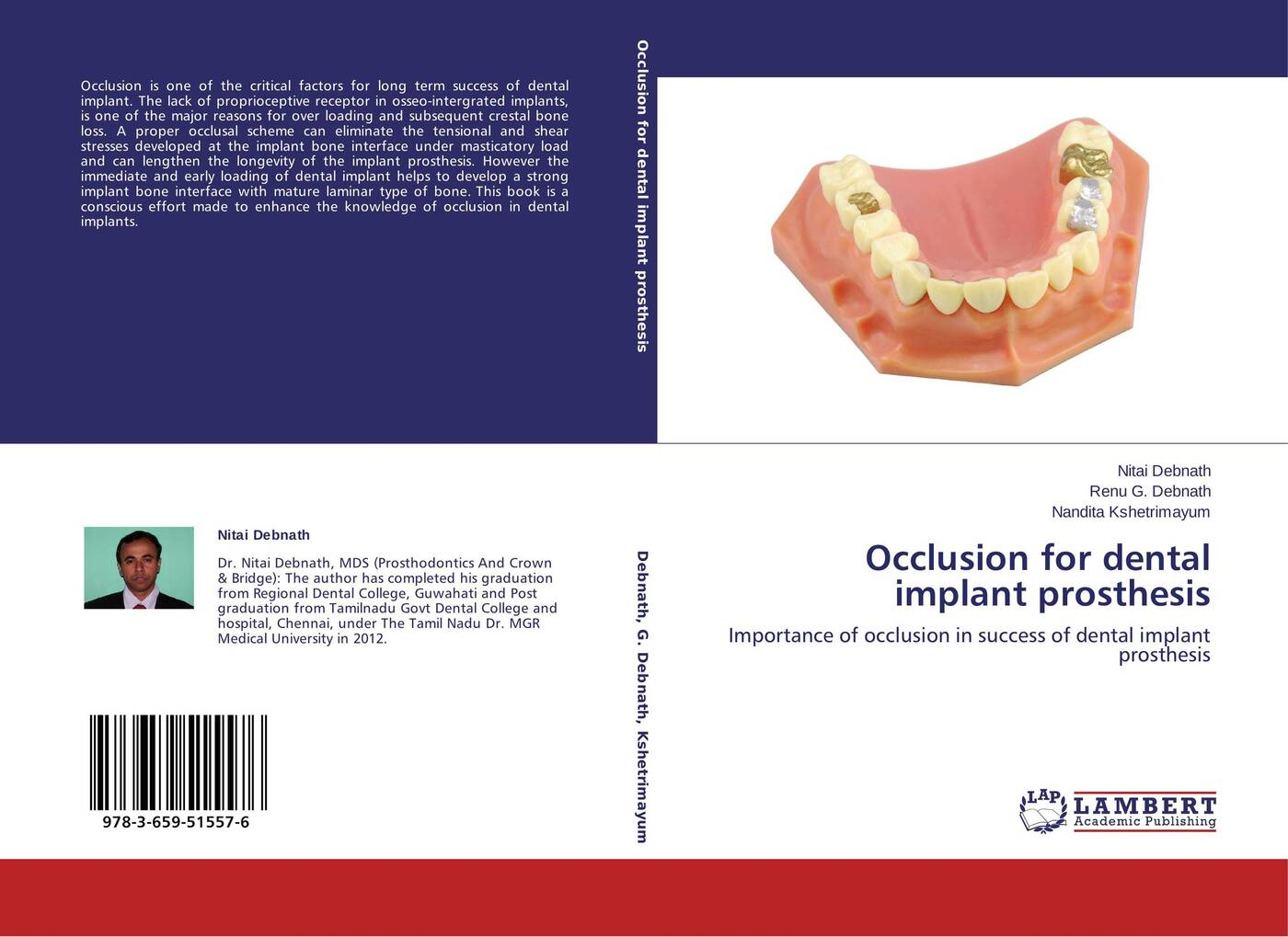 Nitai Debnath,Renu G. Debnath and Nandita Kshetrimayum Occlusion for dental implant prosthesis цена