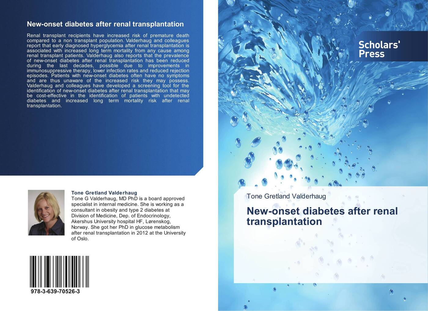 Tone Gretland Valderhaug New-onset diabetes after renal transplantation