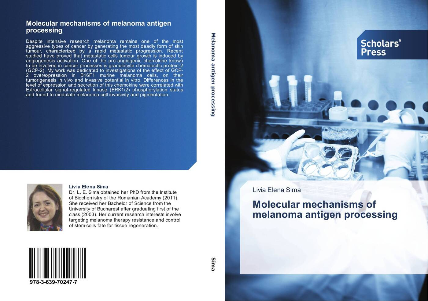 Livia Elena Sima Molecular mechanisms of melanoma antigen processing