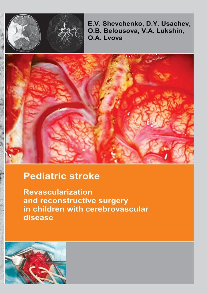 E. Shevchenko Pediatric stroke berkeley moynihan the surgical treatment of gastric and duodenal ulcers