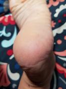 НАНОПЯТКИ Средство для педикюра (гель): удаление трещин, сухих мозолей на стопах, 500мл #4, Виктория М.